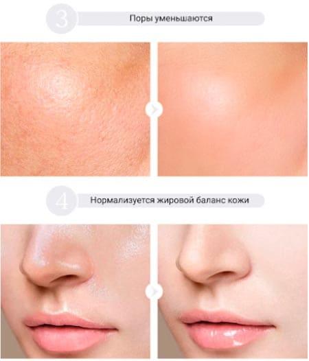 как гиалуронка действует на кожу лица - эффект от применения