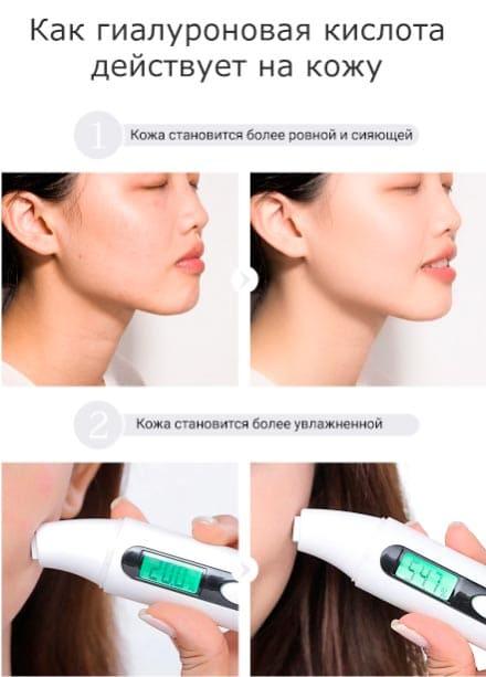 гиалуроновая кислота как применять для лица - как действует на кожу