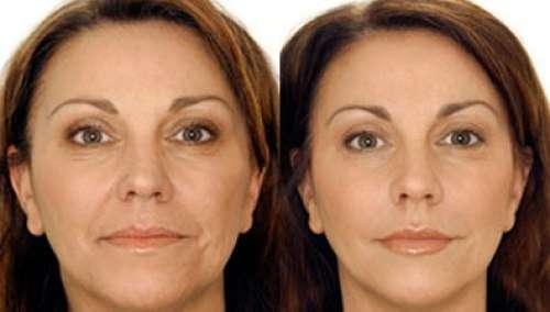 Нестандартные средства для красоты из аптеки - фото до и после