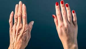 Как ухаживать за кожей рук после 40 лет