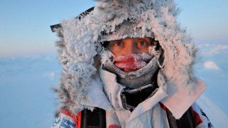 Как лечить обморожение у взрослых и детей